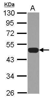p47phox Antibody (PA5-27821) in Western Blot