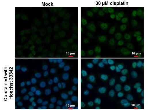 p53 Antibody (PA5-27822) in Immunofluorescence