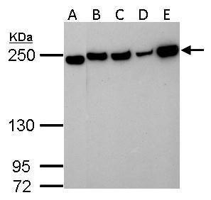 Collagen III Antibody (PA5-27828) in Western Blot
