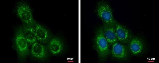 OCRL Antibody (PA5-27844)