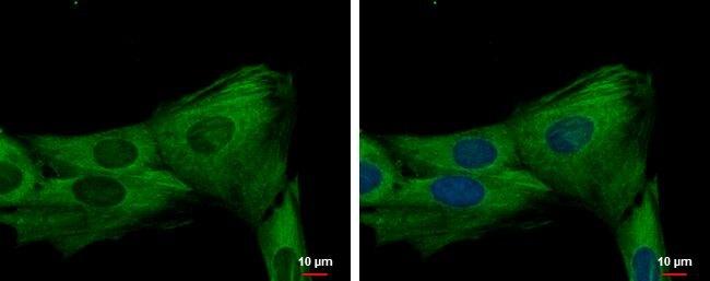 JNK3 / MAPK10 Antibody (PA5-27850)