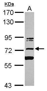 KIAA0020 Antibody (PA5-27851) in Western Blot