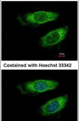 p70 S6 Kinase Antibody (PA5-27853) in Immunofluorescence