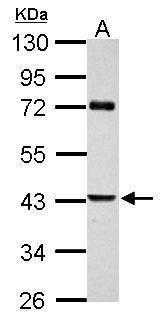 PAI2 Antibody (PA5-27857) in Western Blot