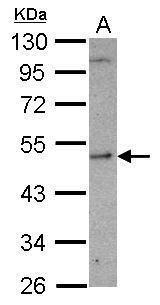 SHMT1 Antibody (PA5-27858)