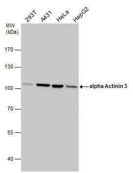 alpha Actinin 3 Antibody (PA5-27862) in Western Blot
