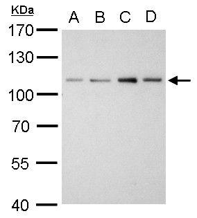 alpha Actinin 2 Antibody (PA5-27863) in Western Blot