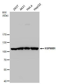 GRP94 Antibody (PA5-27866) in Western Blot