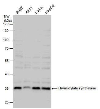 Thymidylate Synthase Antibody (PA5-27867) in Western Blot