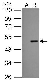 Dengue Virus Type 2 NS1 Antibody (PA5-27885) in Western Blot