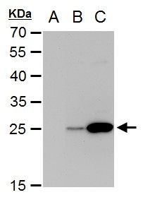 Dengue Virus Type 2 NS4B Antibody (PA5-27887) in Western Blot