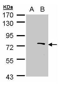 ZMYND11 Antibody (PA5-27899) in Western Blot