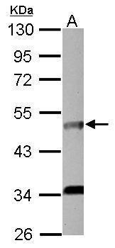 IL5RA Antibody (PA5-27900)