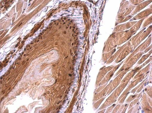 Monoglyceride lipase Antibody (PA5-27915) in Immunohistochemistry (Paraffin)