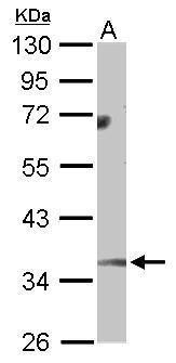 Monoglyceride lipase Antibody (PA5-27915) in Western Blot