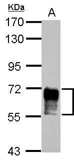 NAB2 Antibody (PA5-27925) in Western Blot