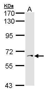 PAPSS1 Antibody (PA5-27929) in Western Blot