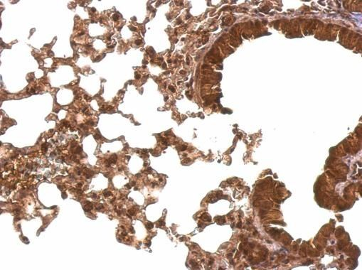 Cyclophilin E Antibody (PA5-27938) in Immunohistochemistry (Paraffin)