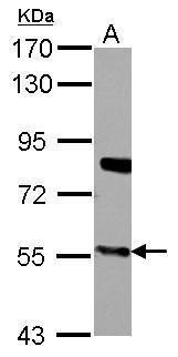 CYP27A1 Antibody (PA5-27946) in Western Blot