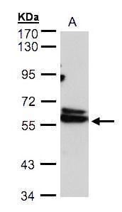TCP-1 delta Antibody (PA5-27954)