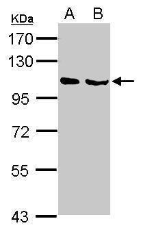 NELL1 Antibody (PA5-27958) in Western Blot