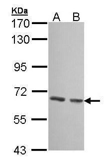 GCKR Antibody (PA5-27959) in Western Blot