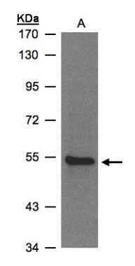 ZNF157 Antibody (PA5-27966) in Western Blot