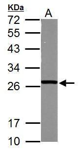 GSTM5 Antibody (PA5-27981)