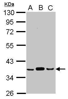 PDHB Antibody (PA5-27989) in Western Blot