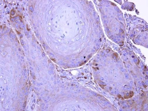 UBE1L Antibody (PA5-27997) in Immunohistochemistry (Paraffin)