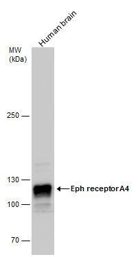 EphA4 Antibody (PA5-27998) in Western Blot