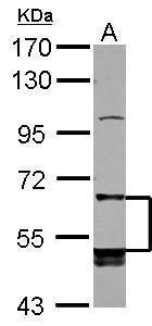 LILRB5 Antibody (PA5-28006) in Western Blot