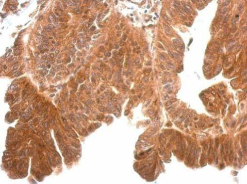 Kallikrein 11 Antibody (PA5-28008) in Immunohistochemistry (Paraffin)