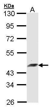 Arfaptin 2 Antibody (PA5-28012) in Western Blot