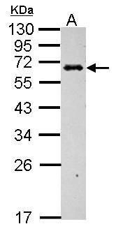 C4BPB Antibody (PA5-28017) in Western Blot
