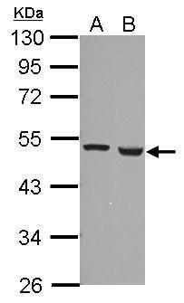 FDXR Antibody (PA5-28018) in Western Blot