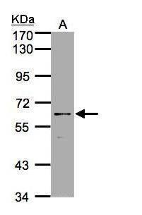 P2X7 Antibody (PA5-28020) in Western Blot
