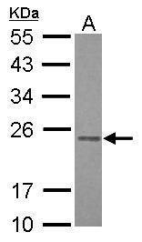 RAB3B Antibody (PA5-28032)