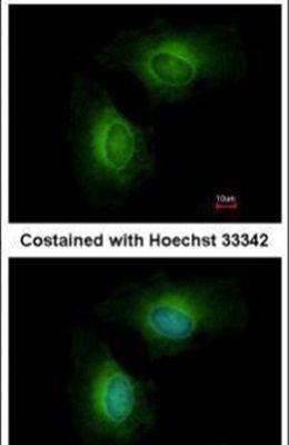 CYP1B1 Antibody (PA5-28040) in Immunofluorescence