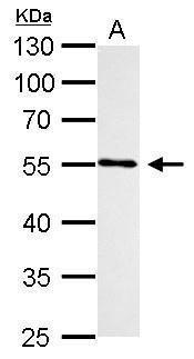 CYP1B1 Antibody (PA5-28040) in Western Blot