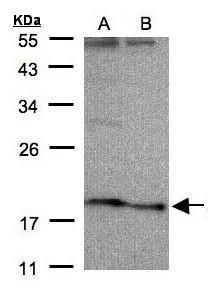 SCN3B Antibody (PA5-28043)