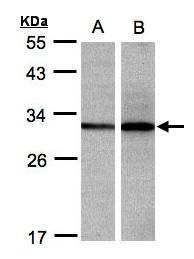 DCI Antibody (PA5-28048) in Western Blot