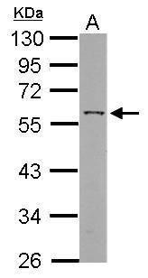 ANGPTL3 Antibody (PA5-28058) in Western Blot