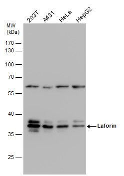 EPM2A Antibody (PA5-28073) in Western Blot