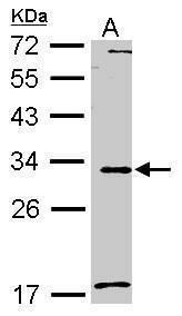 MMP7 Antibody (PA5-28076) in Western Blot