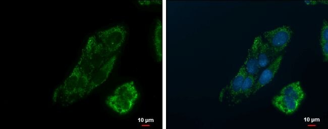 PEPCK Antibody (PA5-28078)