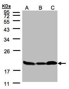 Stathmin 1 Antibody (PA5-28092) in Western Blot