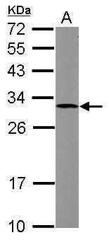 SOCS3 Antibody (PA5-28098) in Western Blot