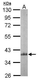 p41-ARCb Antibody (PA5-28103) in Western Blot