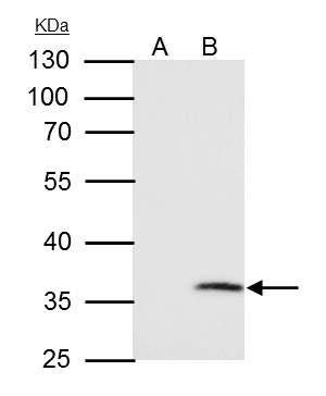 VDAC2 Antibody (PA5-28106) in Immunoprecipitation